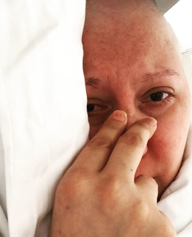 Kemoterapi Günlüğüm